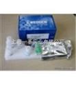 人Ⅰ型膠原N末端 (NTX)Elisa試劑盒